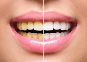greenville teeth whitening