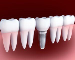 greenville dental implants